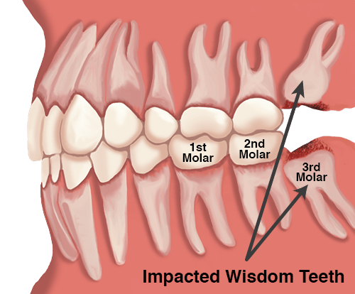 Wisdom Teeth Removal, Wisdom Teeth Surgery