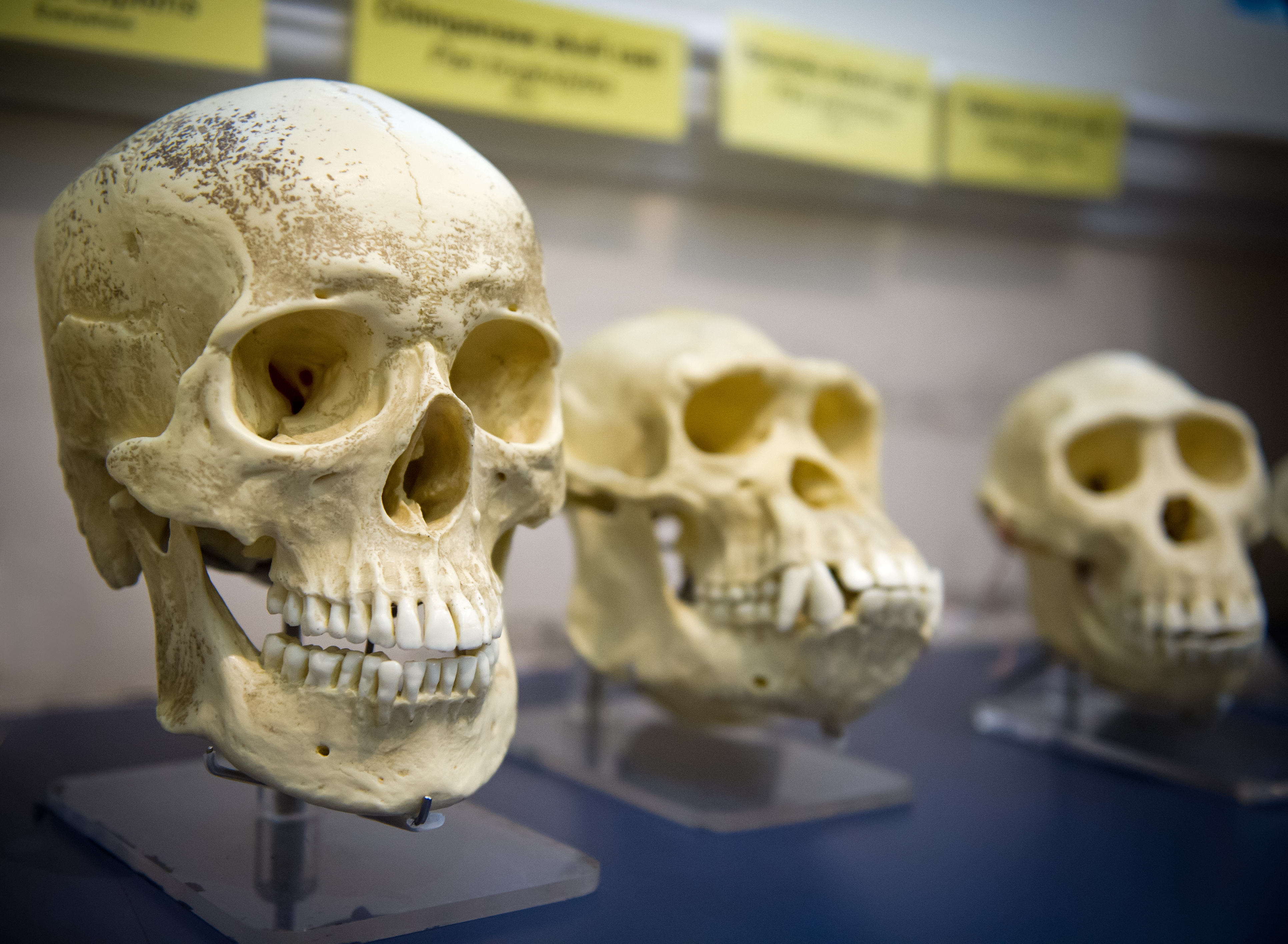 Born Without Wisdom Teeth – Human Evolution?