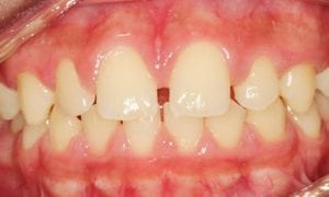 Gap Tooth Braces