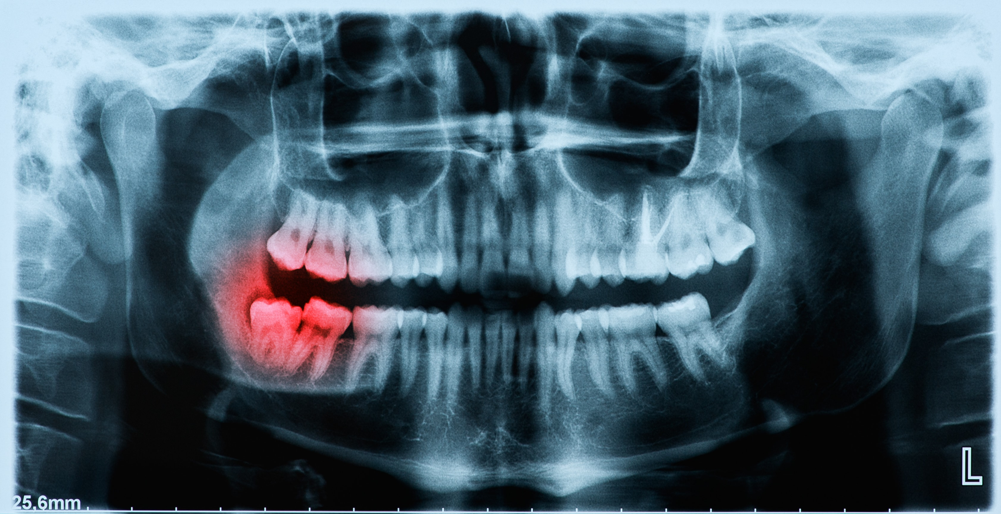 Wisdom Teeth Removal Sydney